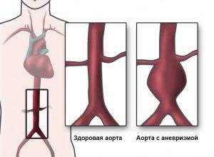 Все о разрыве аорты: причины, симптомы и шансы выжить