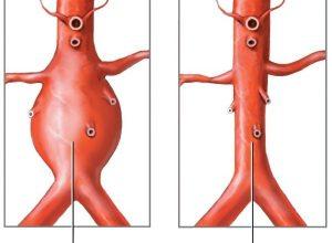 Симптомы и лечение аневризмы брюшного отдела аорты