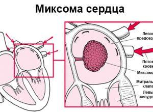 Что такое миксома сердца и насколько на опасна?