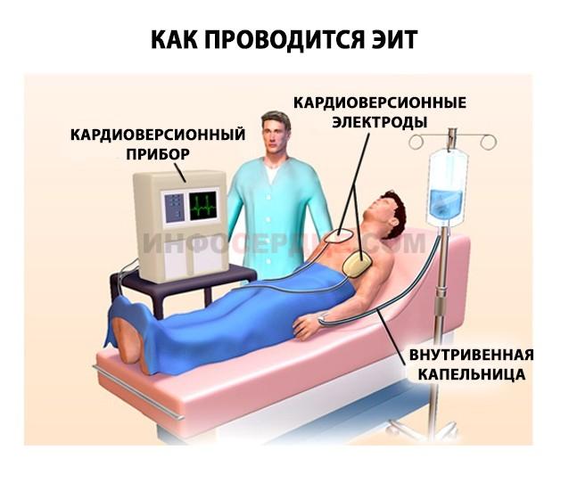 Проведении кардиоверсии