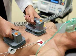 В каких случаях назначается кардиоверсия?