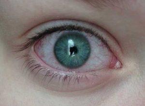 Что делать если лопнул сосуд в глазу?