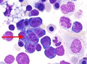 Откуда берутся нормобласты в общем анализе крови?