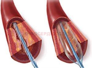 Из-за чего может произойти уплотнение аорты?