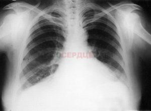 Особенности сердечной астмы