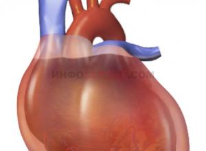 Что такое тампонада сердца и в чем отличие от гемотампонады?