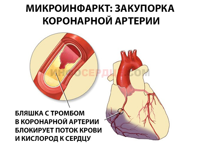 причины микроинфаркта