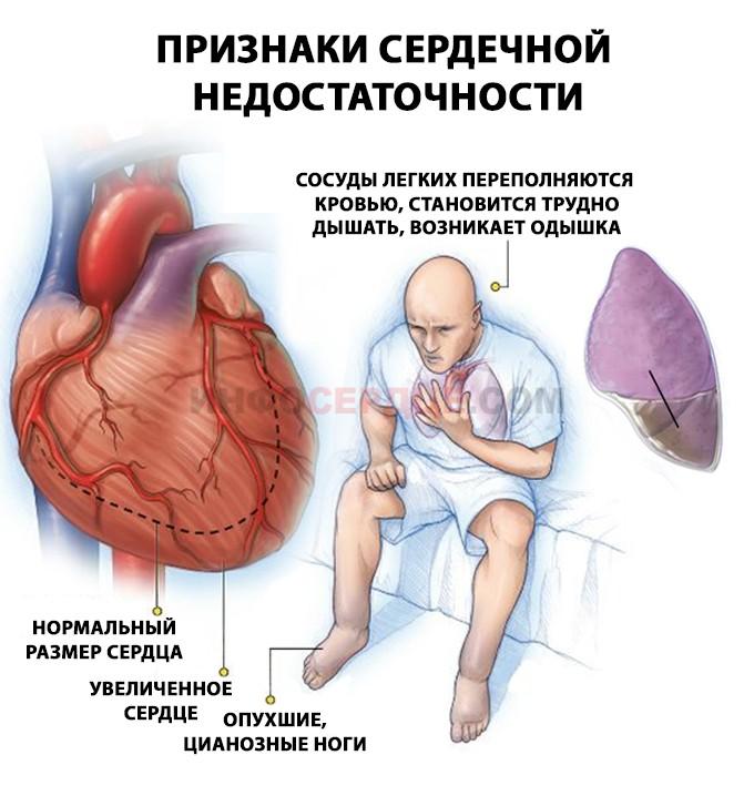 Помощь при острой сердечной недостаточности