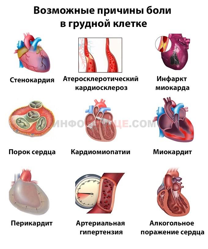 Причины щемящей боли в сердце