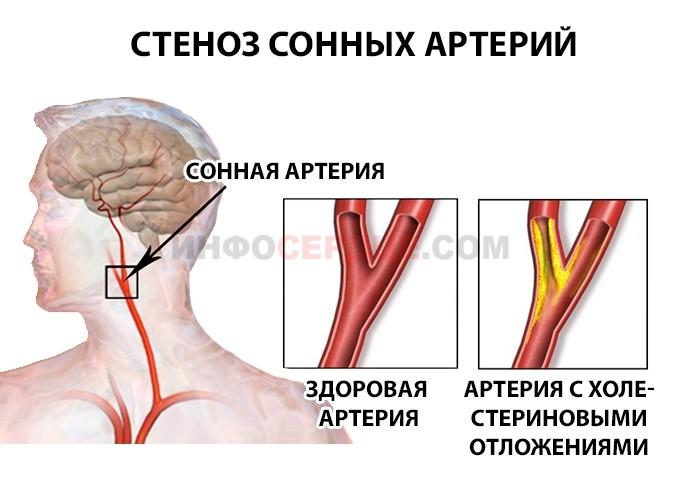 Механизм развития стеноза