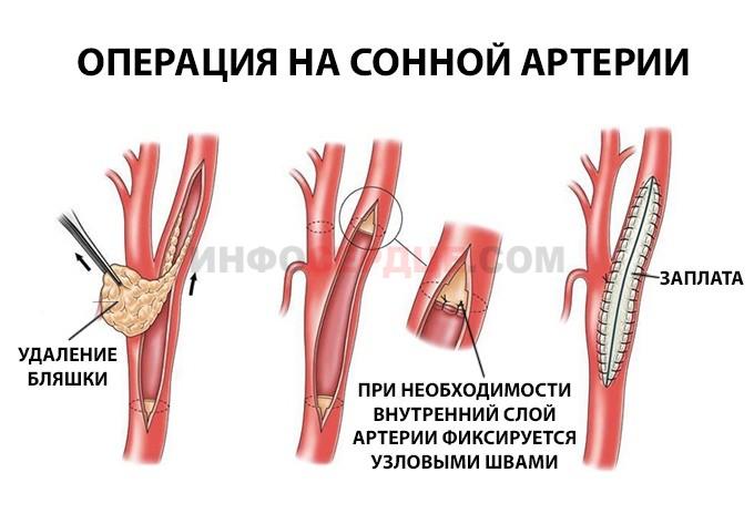Процесс проведения операции по устранению стеноза