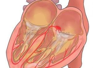 Что такое блокада сердца, какие у нее степени, методы лечения