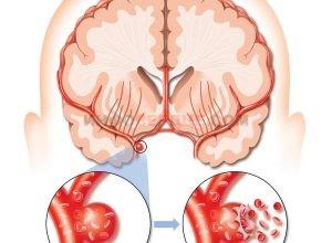 Все про геморрагический инсульт головного мозга