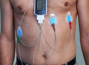 Что такое холтер мониторинг сердца?