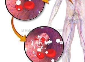 Что такое гипергликемия?