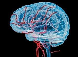 Как можно проверить сосуды головного мозга и шеи?