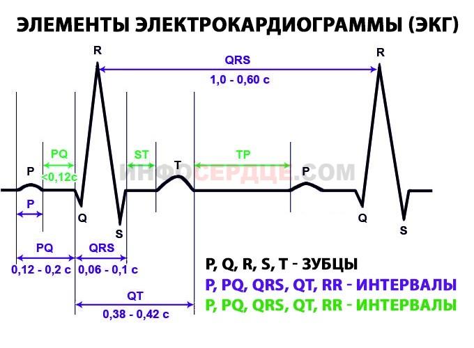 Элементы кардиограммы
