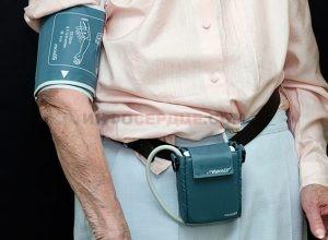 Что такое суточный мониторинг артериального давления (СМАД)?