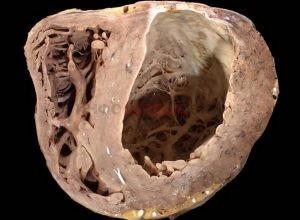 В чем особенность трансмурального инфаркта миокарда?
