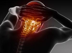 Что означает диагноз — вертебро-базилярная недостаточность (ВБН)?