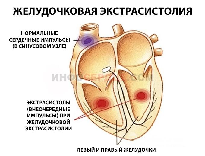 Желудочковая экстрасистолия