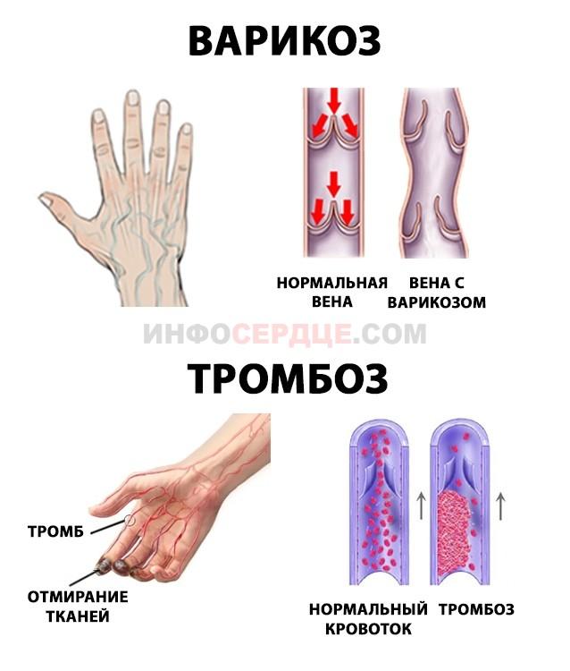 Варикоз и тромбоз