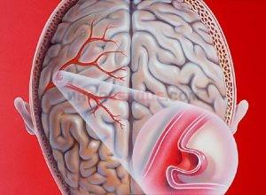 Опасность аневризмы сосудов головного мозга и возможные последствия