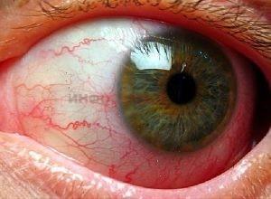 Что такое ангиопатия сетчатки глаз?