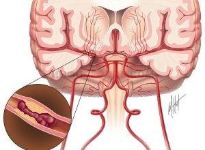 Что такое атеросклероз сосудов головного мозга и к чему он приводит?