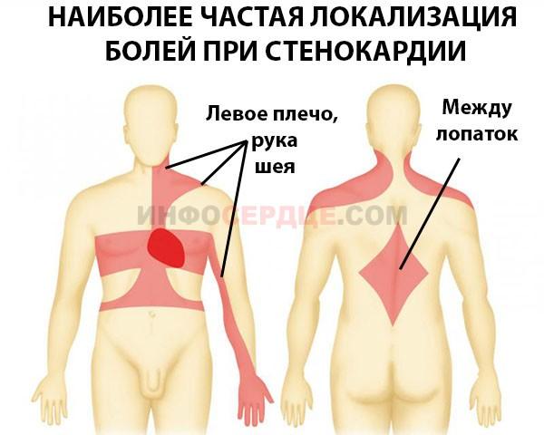 Схема локализации болей при стенокардии