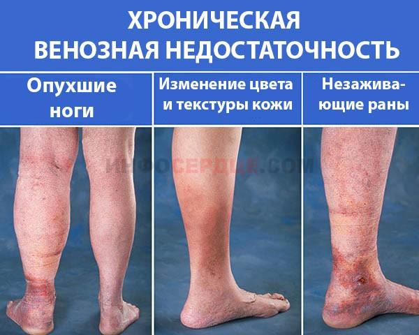 Фото хронической венозной недостаточности ног