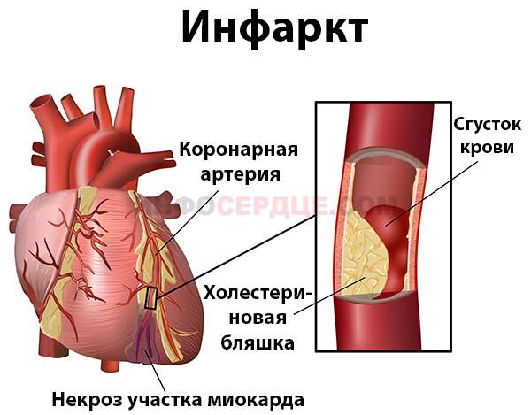 Что происходит во время инфаркта?