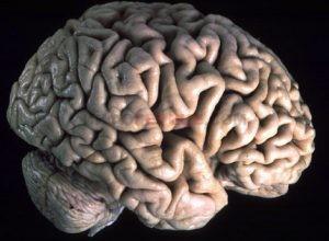 Как улучшить мозговое кровообращение?