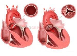 Что такое недостаточность аортального клапана?