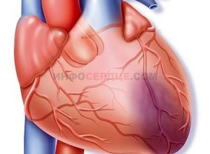 Все про обширный инфаркт миокарда