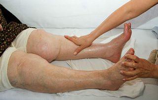 Фото ног, отекающих от сердечной недостаточности