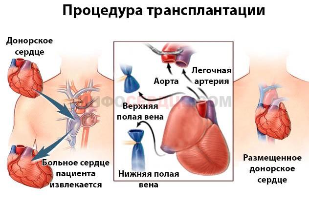 процесс пересадки сердца