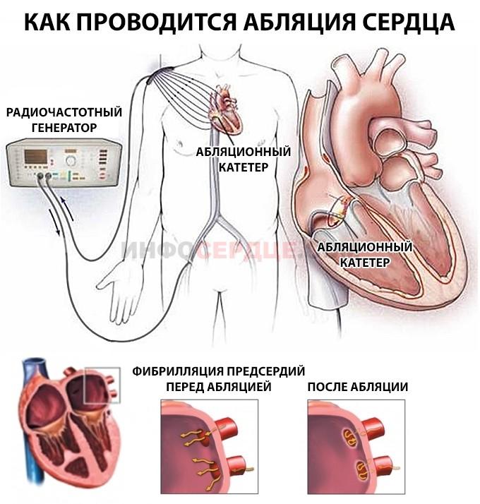 как проводится абляция сердца