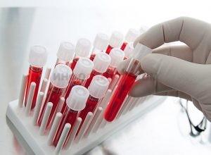 Может ли меняться группа крови?
