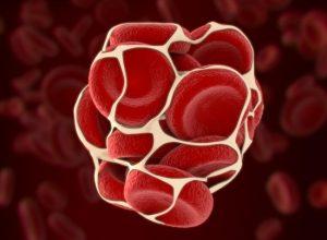 Первые признаки наличия тромба в организме