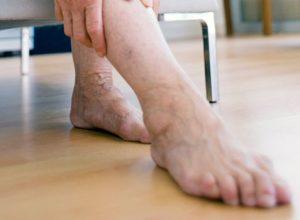 Как распознать наличие тромбов в венах ног?