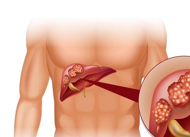 Рак печени 4 стадии: новые методы лечения
