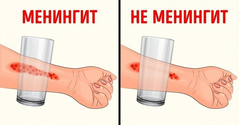 Менингит — симптомы, профилактика, лечение