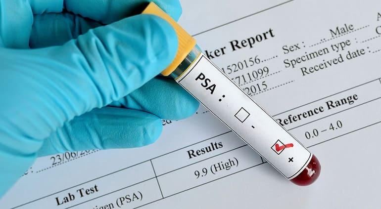 Анализ ПСА у мужчин расшифровка