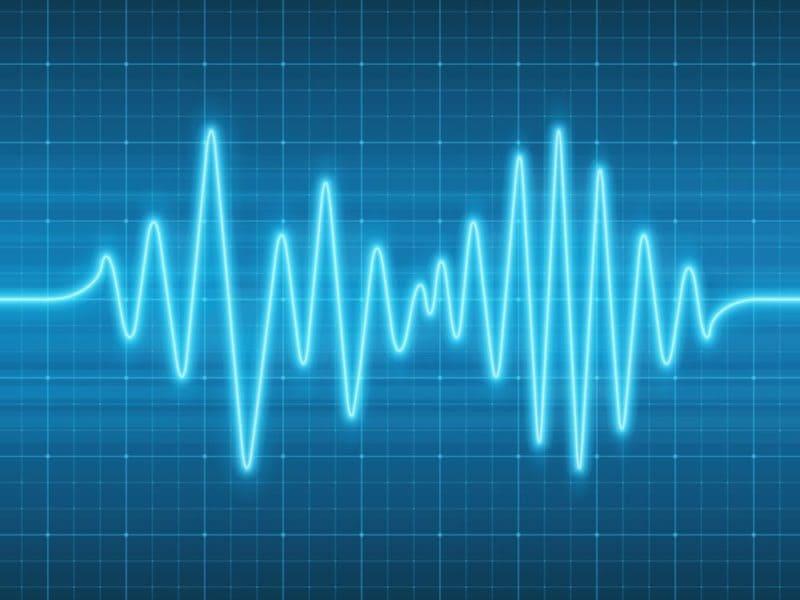 Что делать, если низкий пульс и при этом нормальное давление